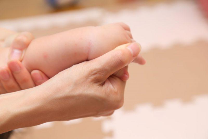 乳児湿疹の症状とはどんなもの?
